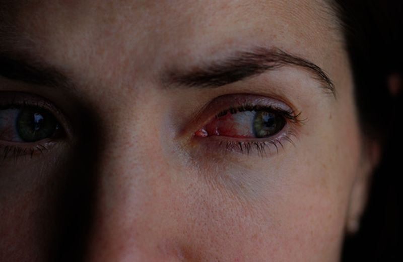 Occhi rossi, i rimedi naturali