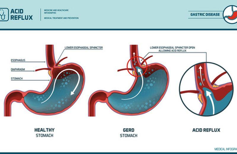 Come prevenire l'esofagite da reflusso
