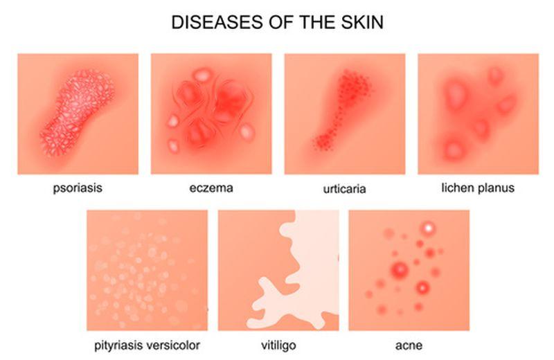 Lichen planus: cos'è e come si cura