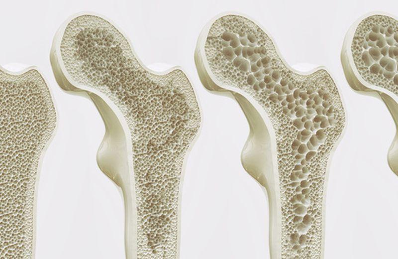 Osteoporosi e sintomi iniziali