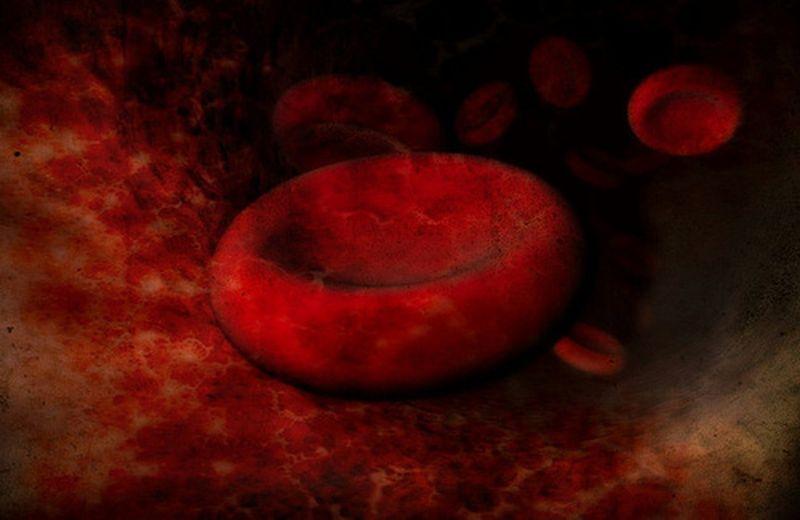Un metallo contro l'anemia: il ferro