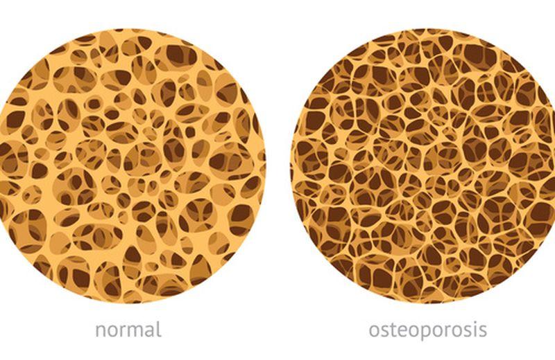 "Osteoporosi: la campagna ""Stop alle fratture"""