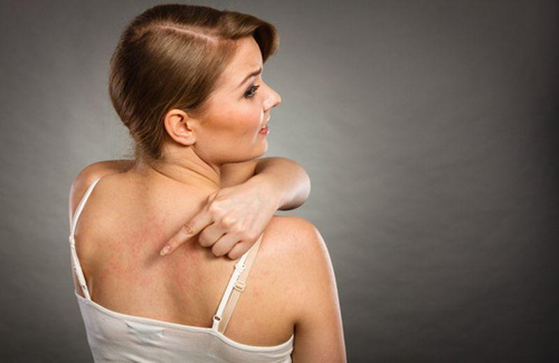 Eczema, rimedi naturali