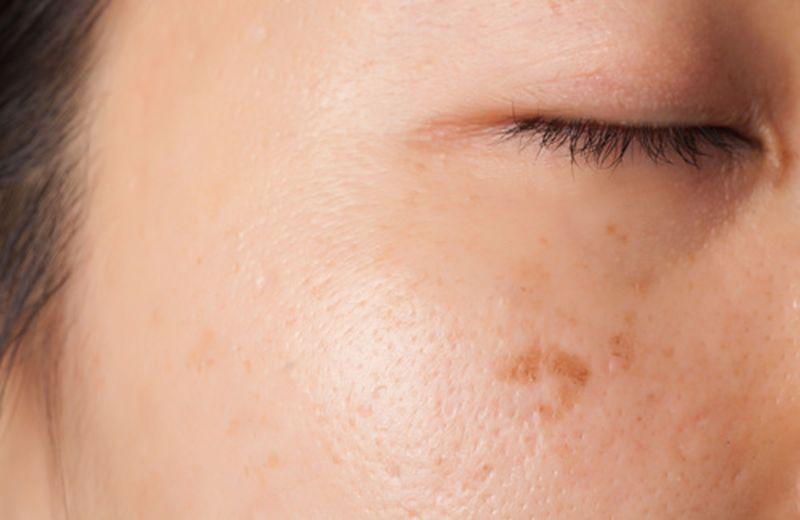 Macchie scure sulla pelle, le principali cause