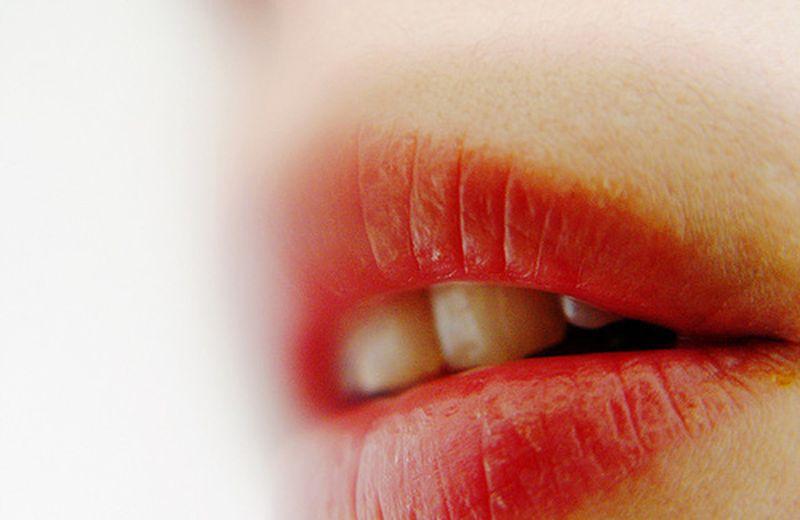 Bocca a prova di bacio con i rimedi naturali per l'alitosi