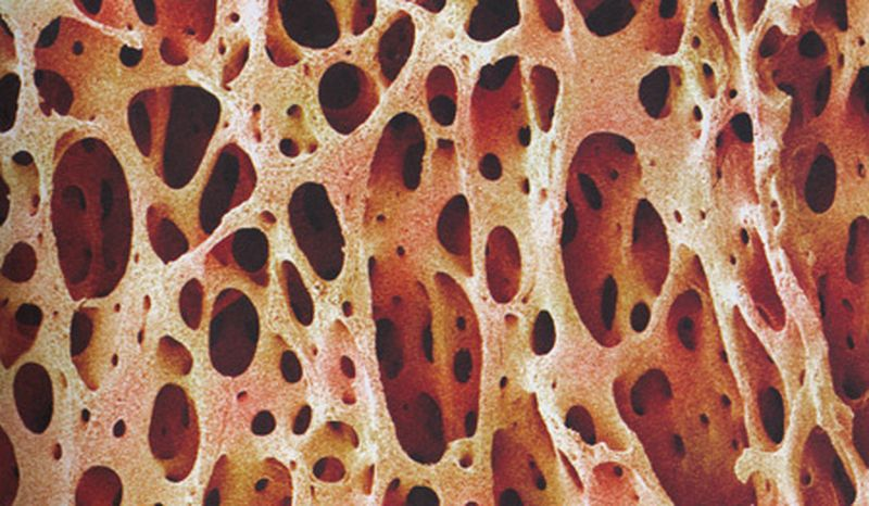 Acidità ematica: come ti indebolisco le ossa