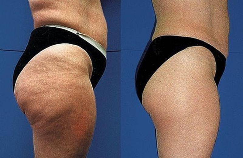 I rimedi naturali per la cellulite e il sovrappeso